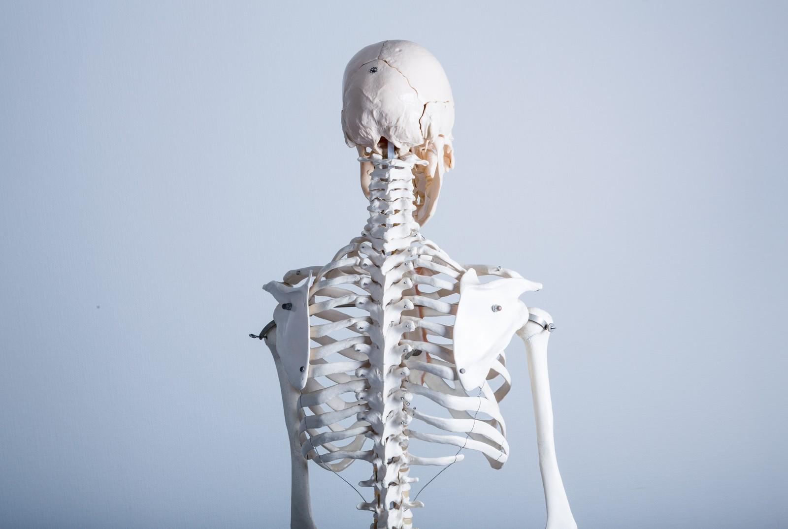 首が痛い件( ストレートネック 、頚推推看板ヘルニア)