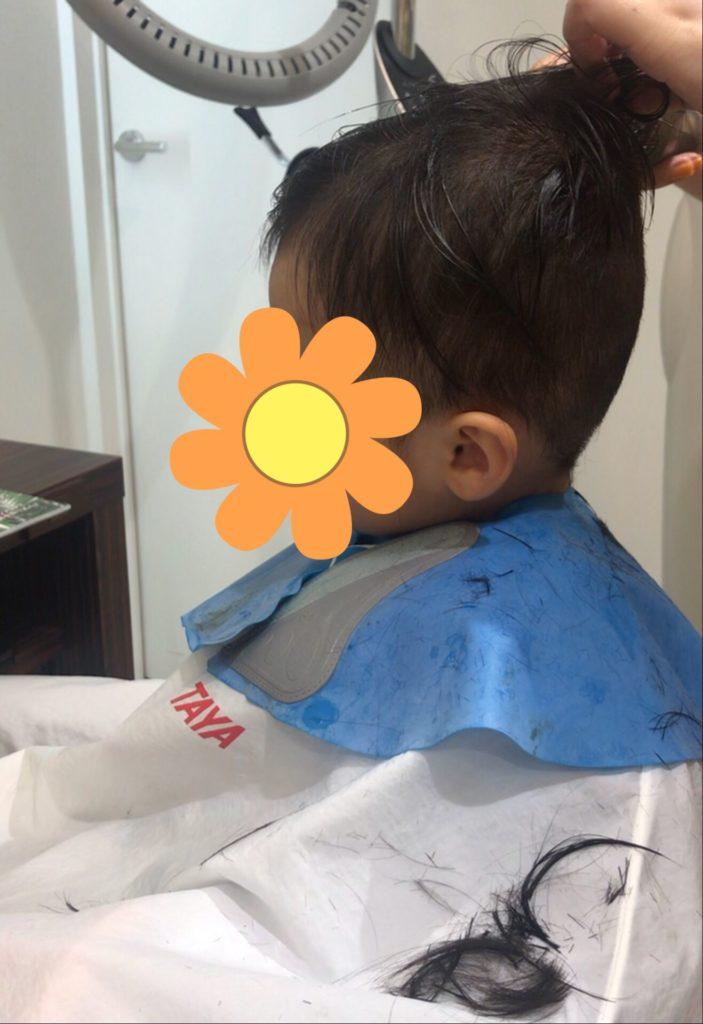 脂腺母斑 散髪