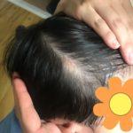 我が子の脂腺母斑を手術で除去する (前編 脂腺母斑判定から手術前日まで)